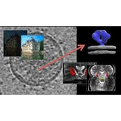 Image and Video Processing: From Mars to Hollywood with a Stop at the Hospital