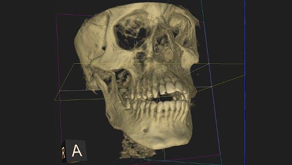 Introduction To Dental Medicine Coursera