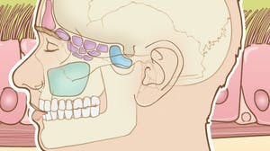 Acute and Chronic Rhinosinusitis: A Comprehensive Review
