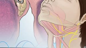 Voice Disorders: What Patients and Professionals Need to Know