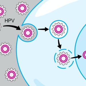 HPV-Associated Oral and Throat Cancer: What You Need to Know