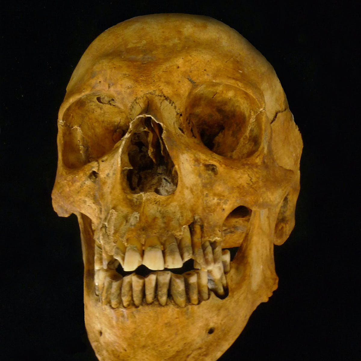 Osteoarchaeology: The Truth in Our Bones