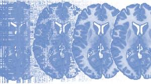 Principles of fMRI 1