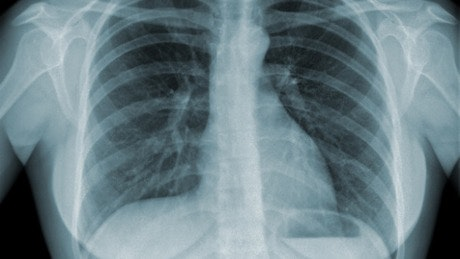 Global Tuberculosis (TB) Clinical Management and Research