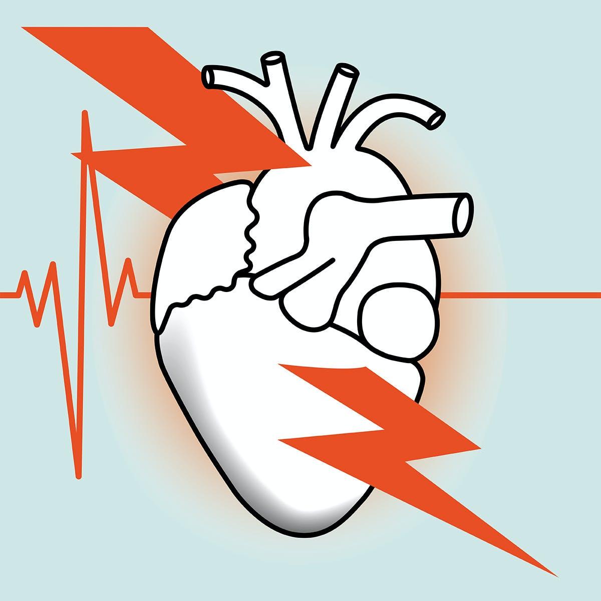 Myocardial Infarction