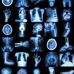 Общие вопросы патологии и патологической анатомии (General Issues of Pathology and Pathologic Anatomy) by Saint Petersburg State University