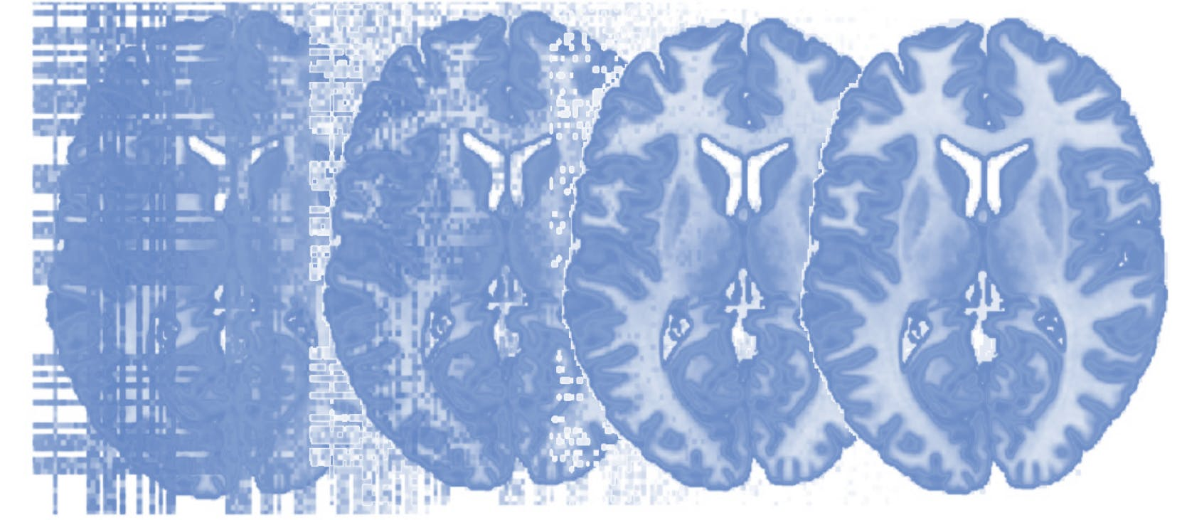 Principles of fMRI 1